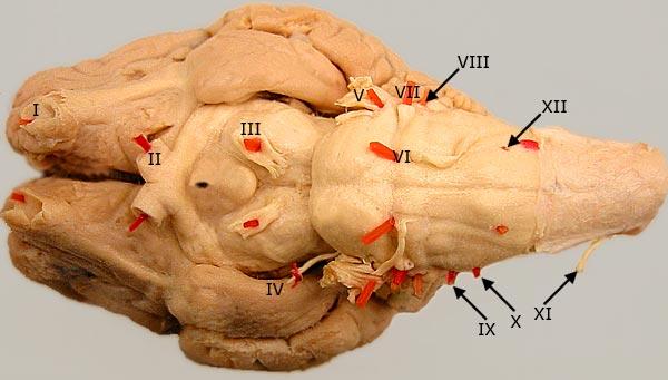 Cranial Nerve Quiz Home Page