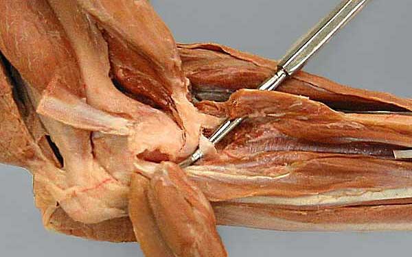 Pronator Quadratus Cadaver