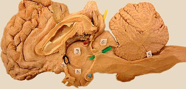 Pig Brain Anatomy