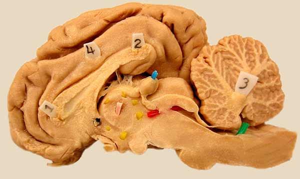 Myelencephalon Median Ventral Sheep Brain
