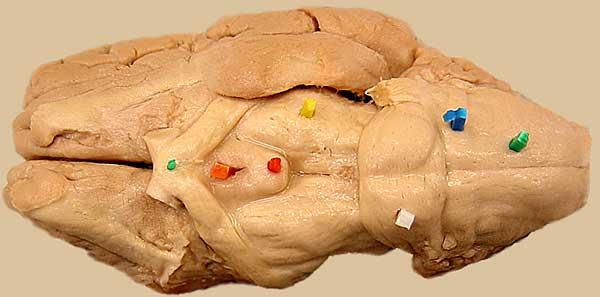 Sheep Brain — Ventral View