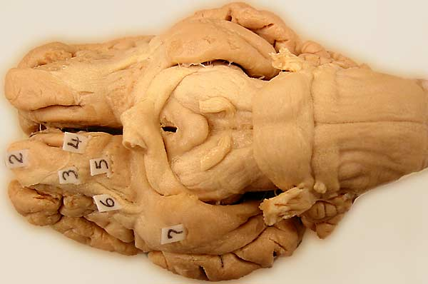 Sheep brain anatomy ventral - photo#44