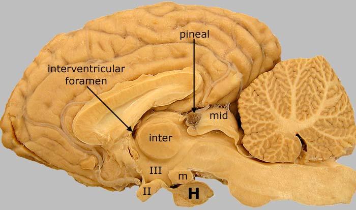 Equine Brain Median View
