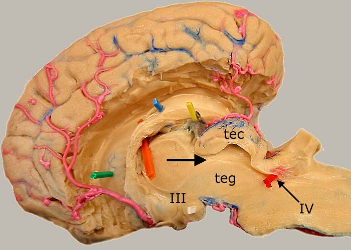 Dissected Equine Brain Median View