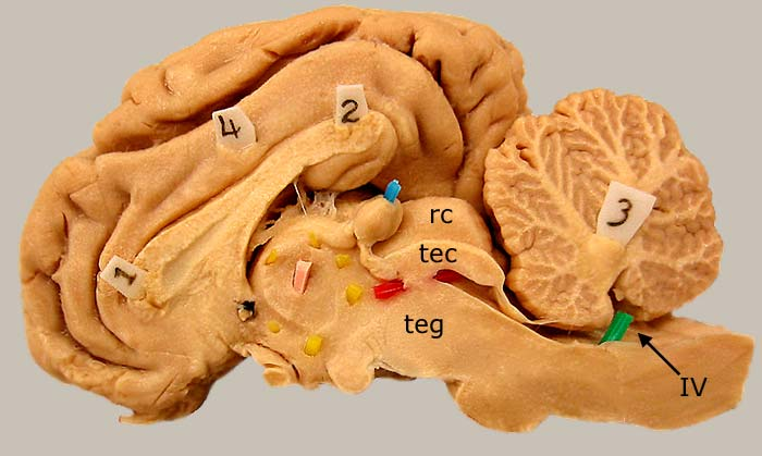 Unlabeled Sagittal View Of Brain Human Brain Gross Anatomy Ms Brain Human Anatomy Charts furthermore Ansicht ventral likewise 5042088 also Epiglottis besides Musculus Opponens Pollicis. on median and sagittal